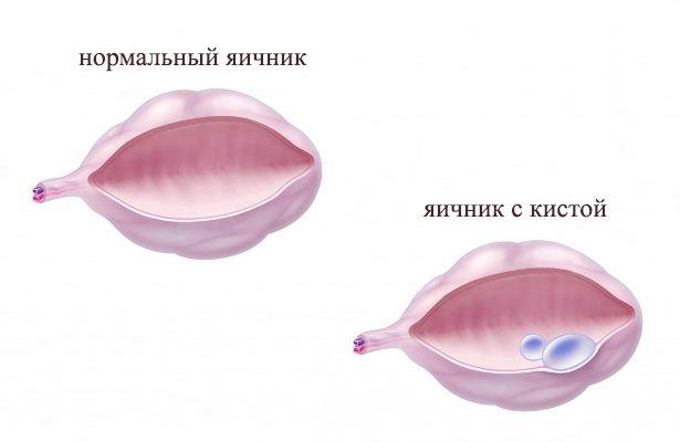 Лапаротомия Кисты Яичника Видео