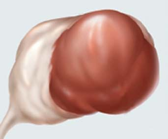 Причины возникновения кисты на правом яичнике