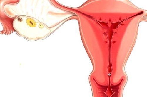 Хронический эндометрит - это