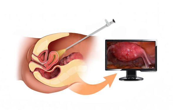 удаление кисты яичника лапароскопия фото