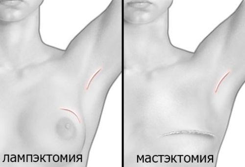 Лучевая терапия рака молочной
