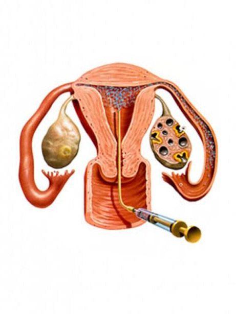 анализы перед увеличением груди