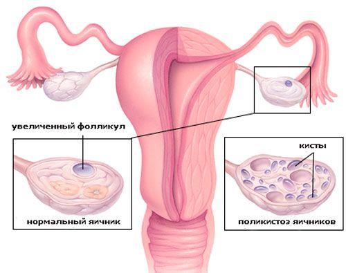 Планирование беременности при поликистозе яичников
