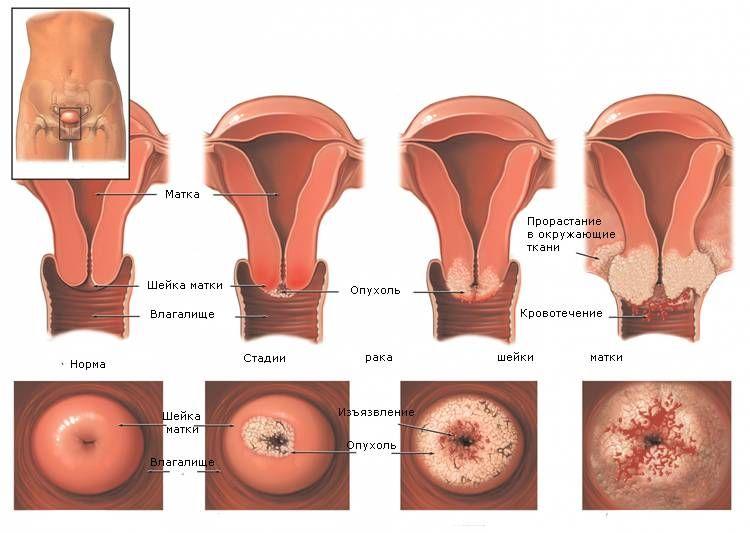Передача рака груди при сексе фото 300-577
