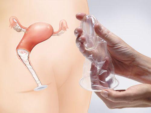 Плюсы и минусы секса без презерватива